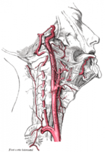Gray's Anatomy - Common Carotid Artery branching into Internal and External Carotid Artery Stenting and Angioplasty