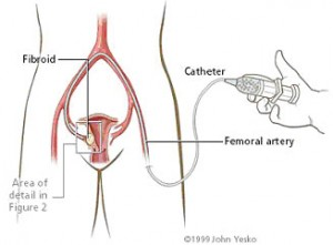 A catheter is guided up the femoral artery to the uterine artery.