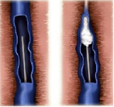 Injection of a sclerosant in a varicose vein
