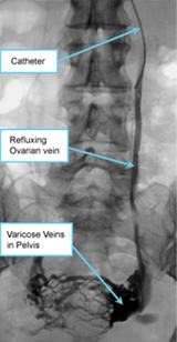 Embolisation-OvarianVein