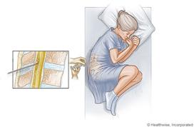 LumbarPuncture